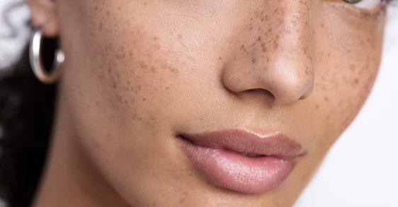 Uudistettu koostumus rasittuneelle iholle
