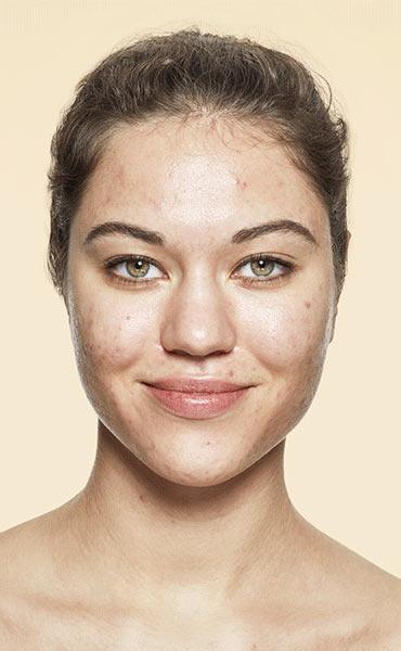 v_anim-acne_1.jpg